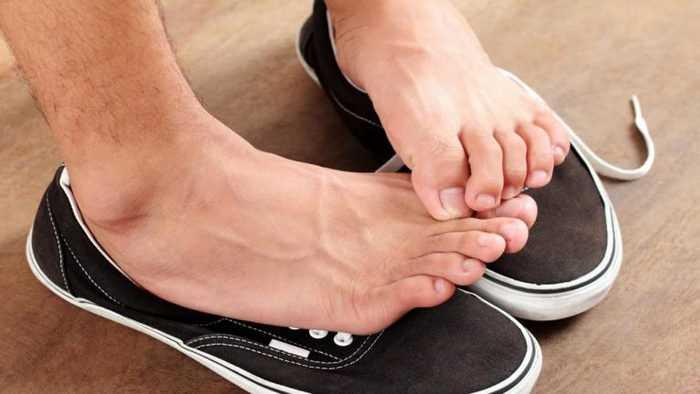 Потеют ноги в обуви
