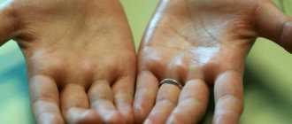 Потеют руки